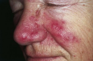 Moderate to severe rosacea