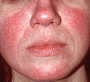 Mild to moderate rosacea