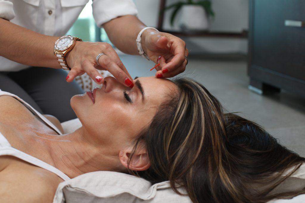Cosmetic acupunture