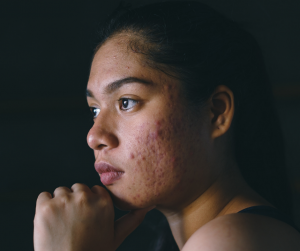 Woman with acne and acne scars. Acne can be a sign of alcohol-damaged skin.