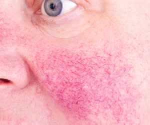 Rosacea can be a result of alcohol-damaged skin